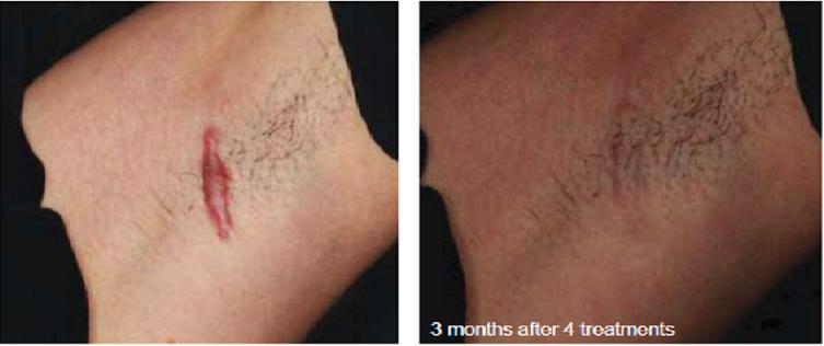 Самые читаемые статьи: Удаление бородавок на таганке